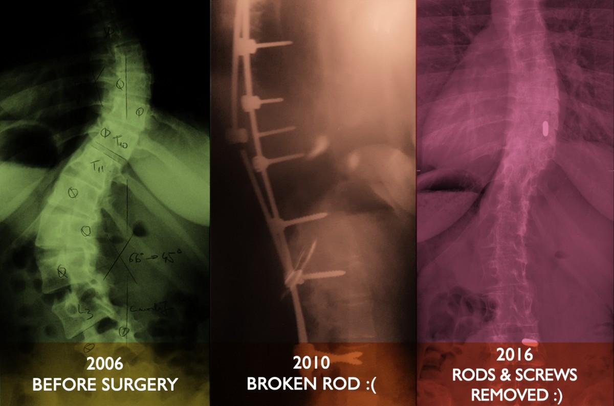 denisa ratulea scoliosis surgery